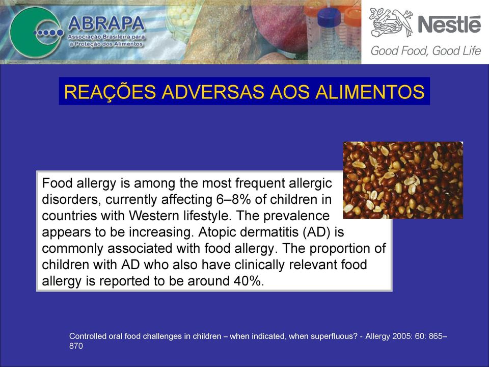 Atopic dermatitis (AD) is commonly associated with food allergy.