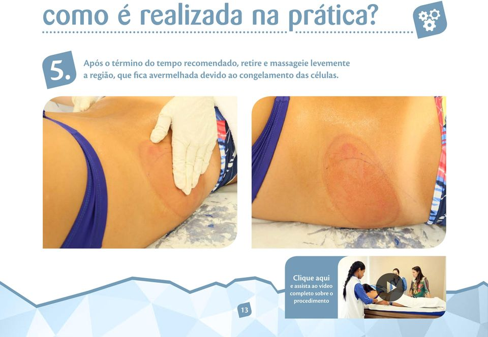 retire e massageie levemente a região,