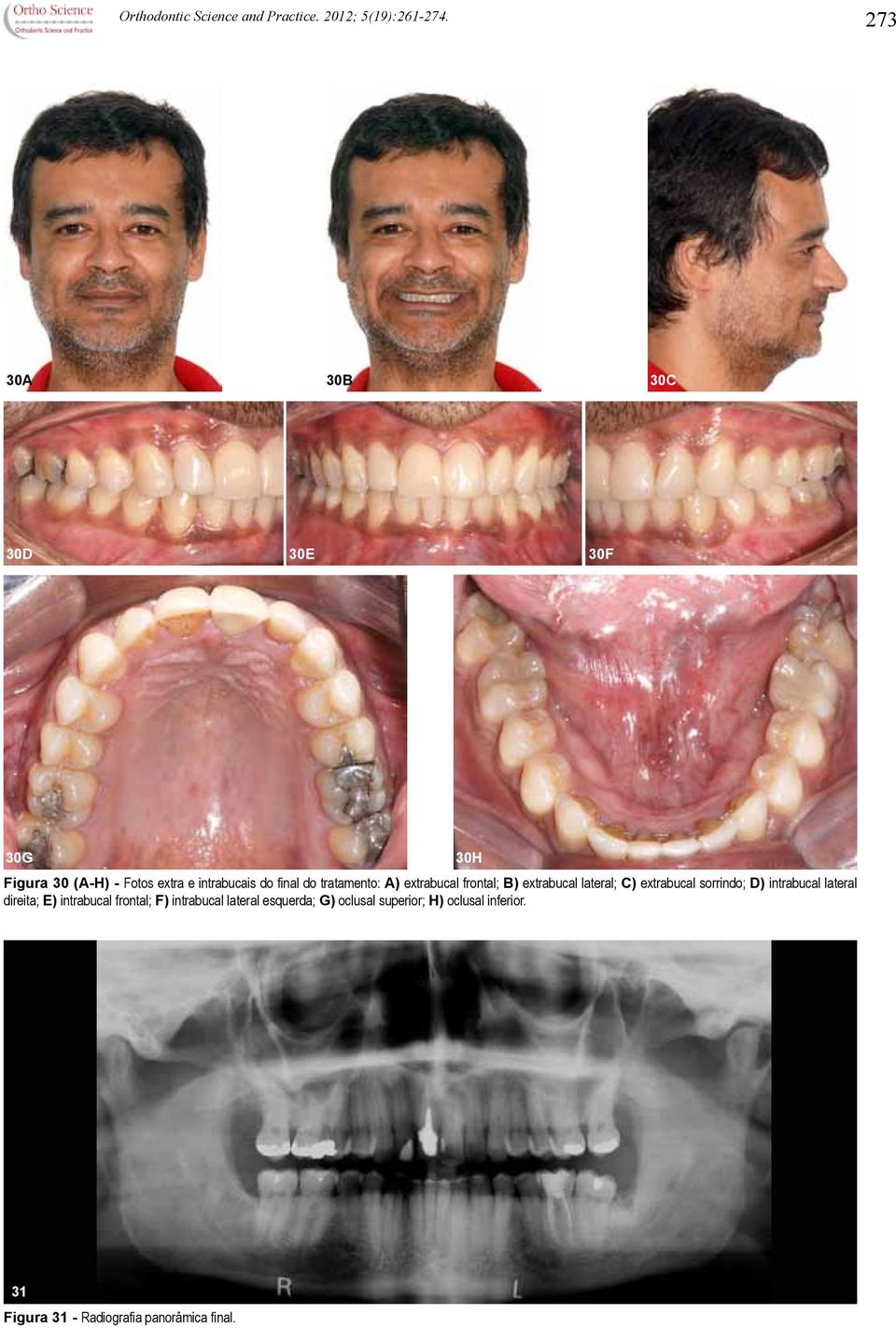 A) extrabucal frontal; B) extrabucal lateral; C) extrabucal sorrindo; D) intrabucal lateral direita;