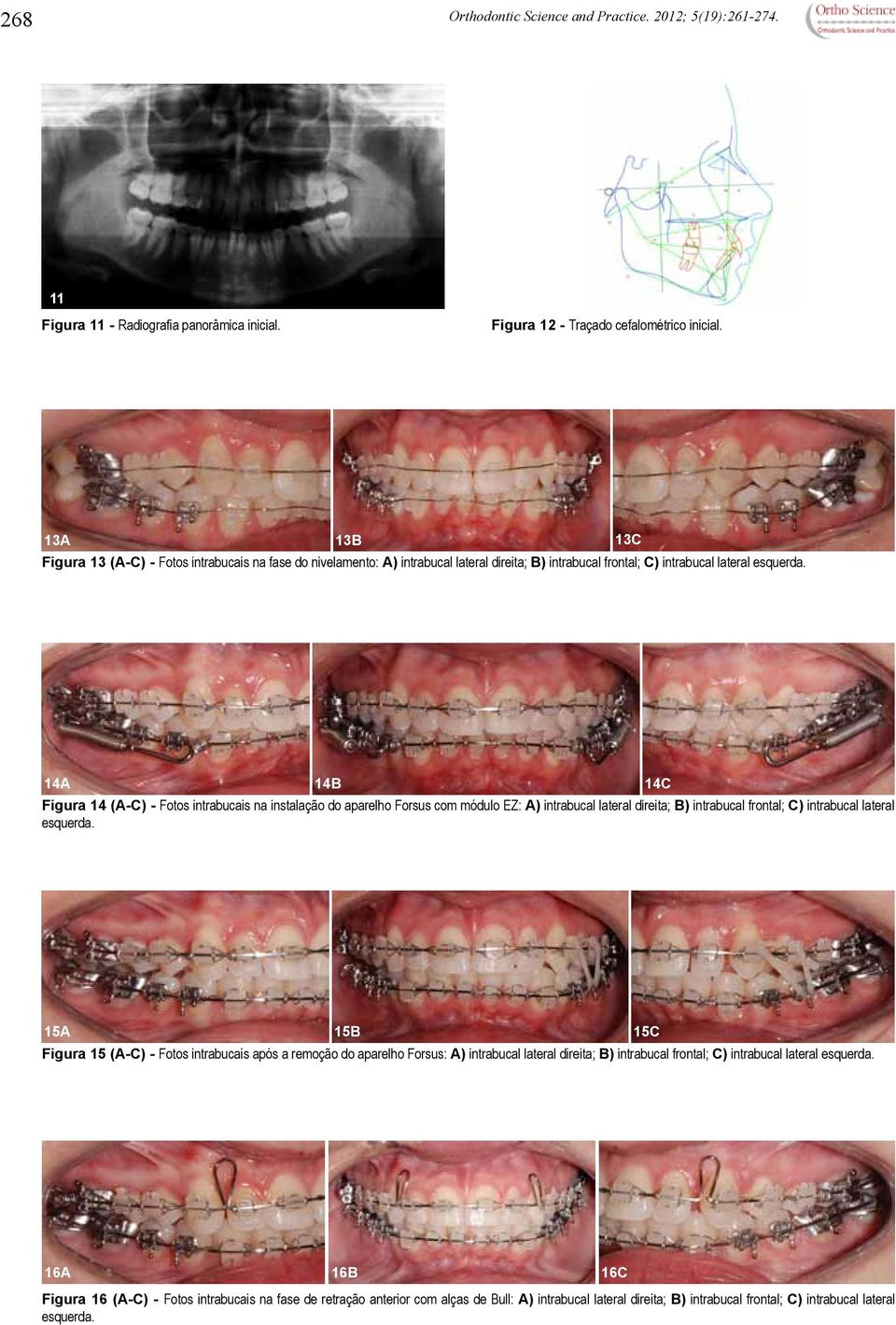 14A 14B Figura 14 (A-C) - Fotos intrabucais na instalação do aparelho Forsus com módulo EZ: A) intrabucal lateral direita; B) intrabucal frontal; C) intrabucal lateral esquerda.