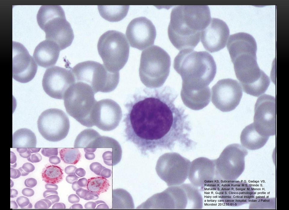 Clinico-pathological profile of Hairy cell leukemia: Critical insights