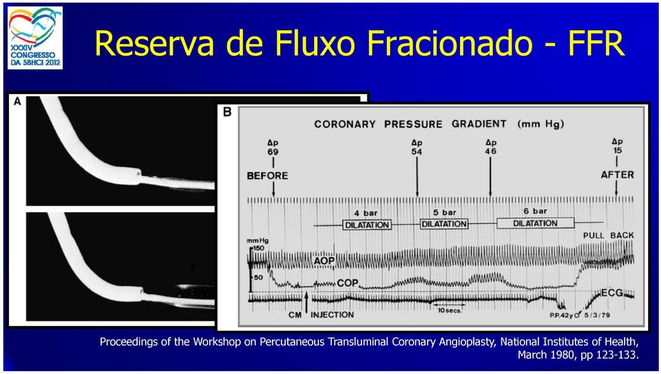 Percutaneous Transluminal Coronary