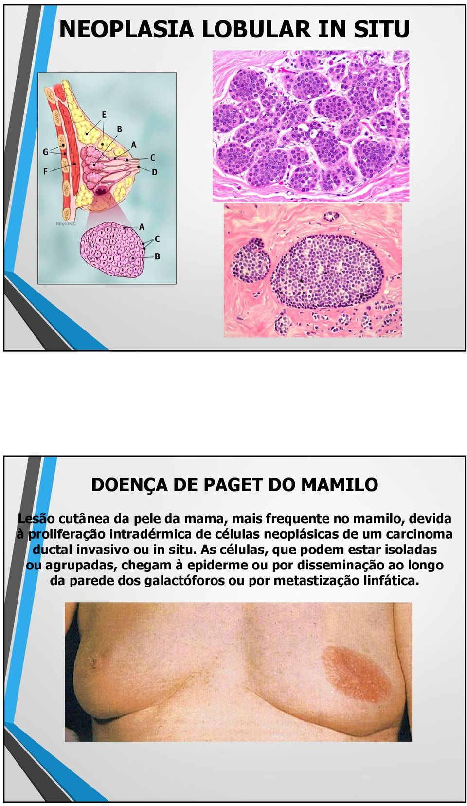carcinoma ductal invasivo ou in situ.