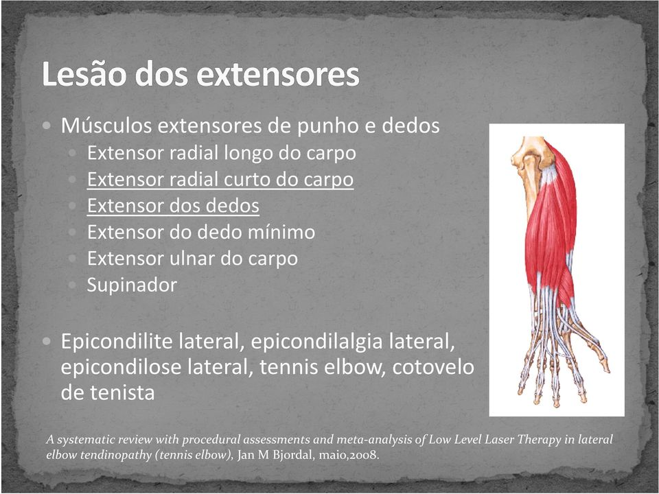 epicondilalgialateral, epicondiloselateral, tenniselbow, cotovelo de tenista A systematic review with