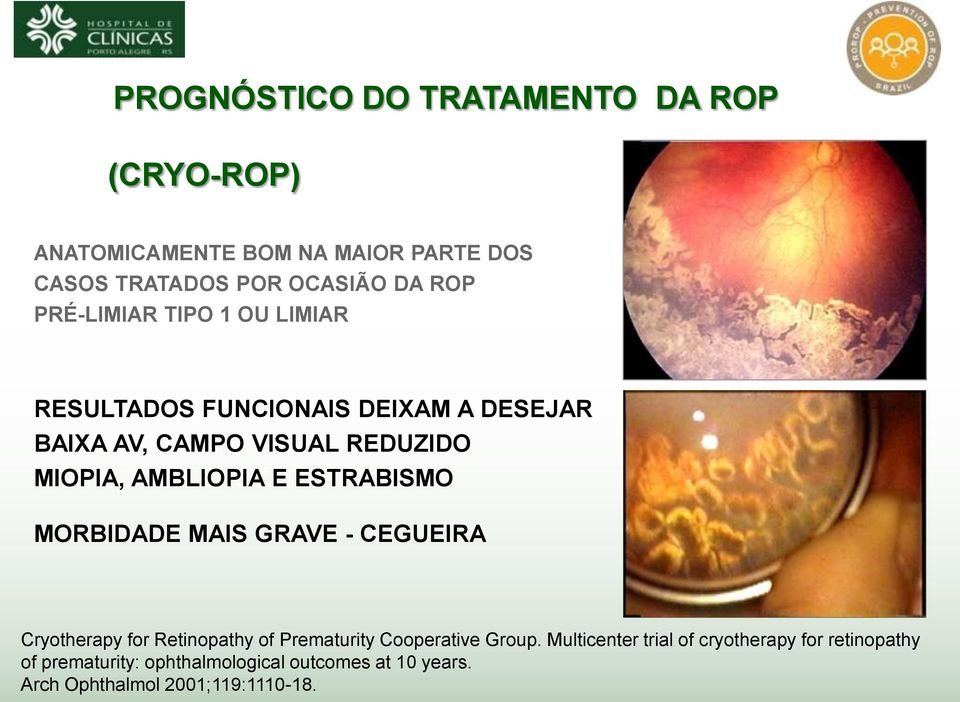 ESTRABISMO MORBIDADE MAIS GRAVE - CEGUEIRA Cryotherapy for Retinopathy of Prematurity Cooperative Group.