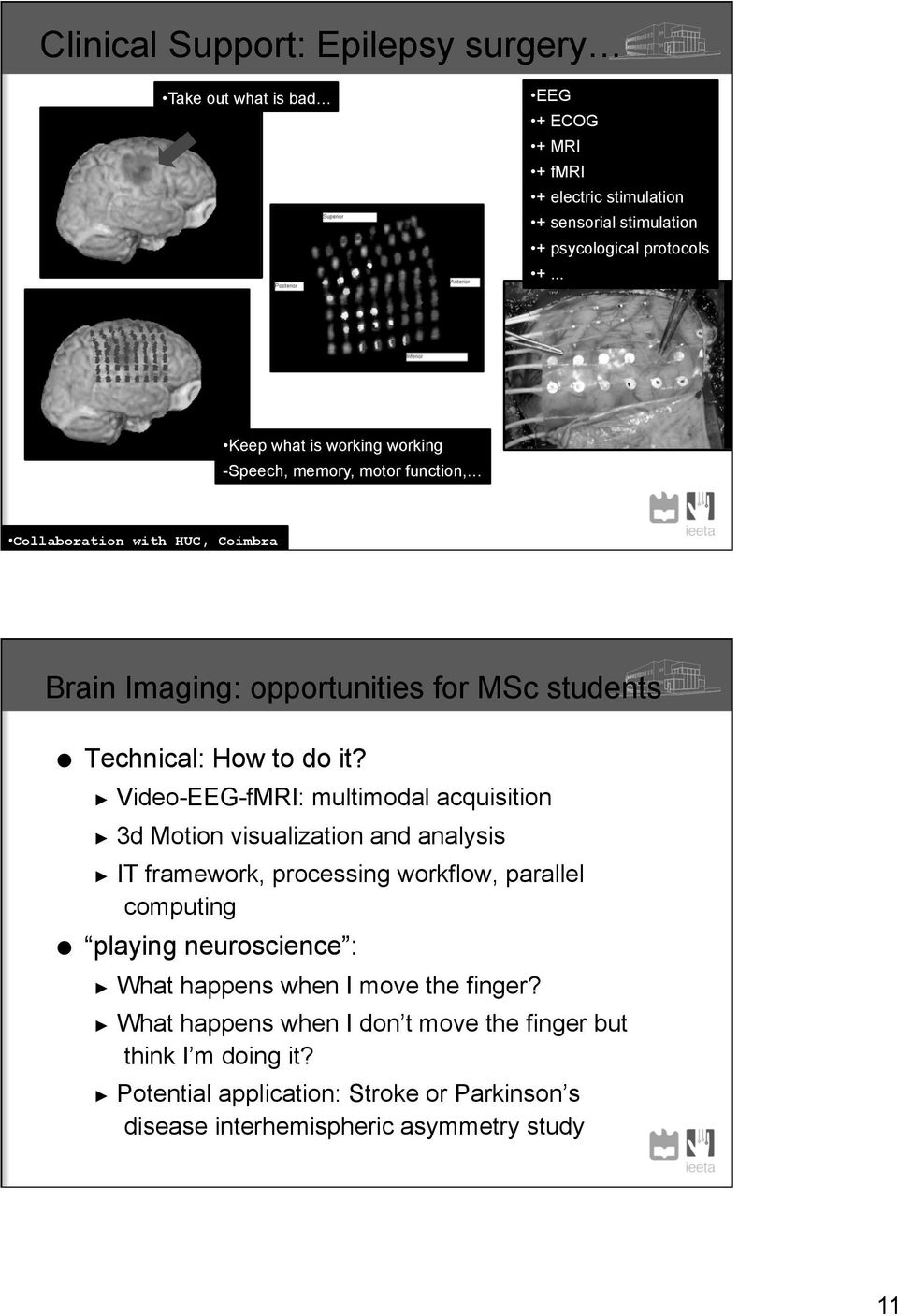 Video-EEG-fMRI: multimodal acquisition 3d Motion visualization and analysis IT framework, processing workflow, parallel computing playing neuroscience : What happens