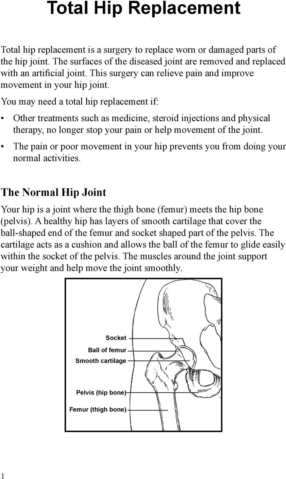 You may need a total hip replacement if: Other treatments such as medicine, steroid injections and physical therapy, no longer stop your pain or help movement of the joint.