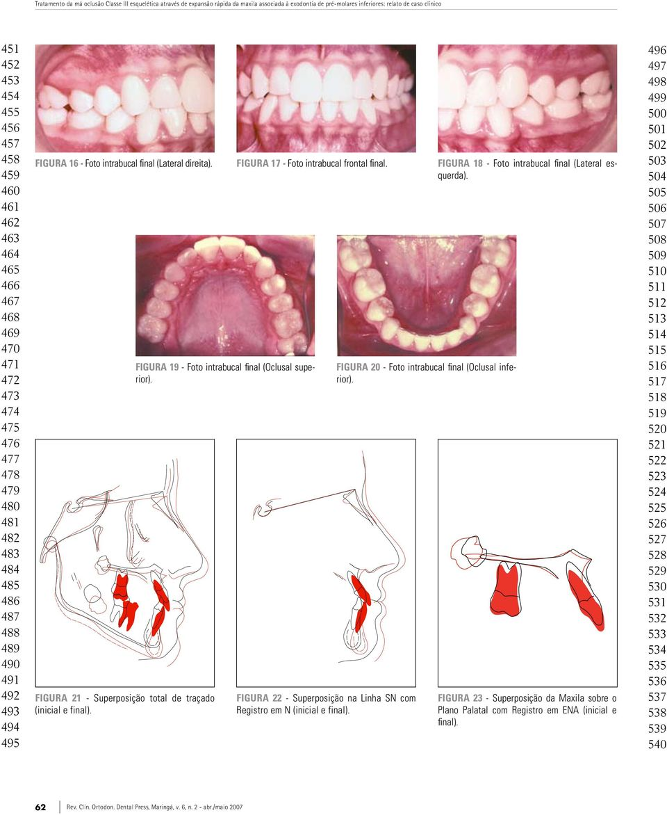 Figura 21 - Superposição total de traçado (inicial e final). Figura 17 - Foto intrabucal frontal final. Figura 19 - Foto intrabucal final (Oclusal superior).
