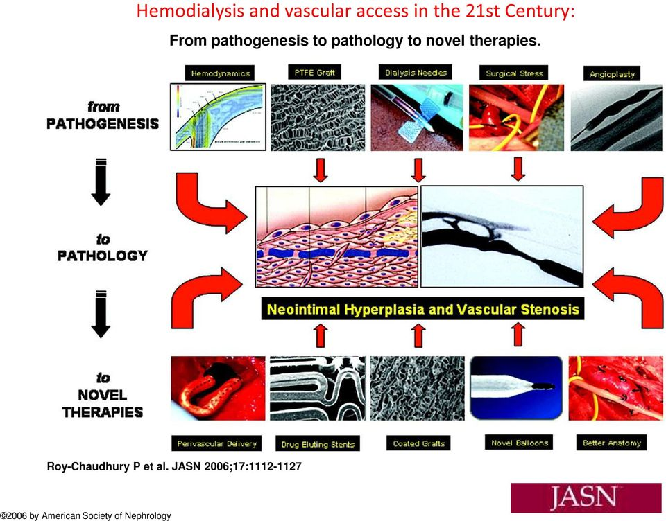 novel therapies. Roy-Chaudhury P et al.