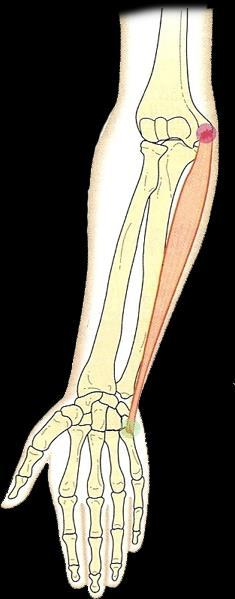 Flexor ulnar