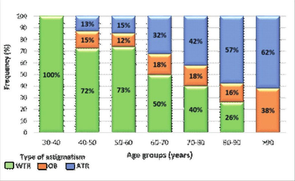 Steeper corneas with shorter AL were found in the female group (p = 0.001). Table 2 shows the distribution by gender and type of astigmatism.