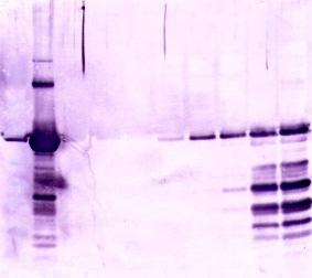 B, SDS-PAGE and Western Blot results of selected samples. PSM SDS-PAGE and Western Blot Ap. MW 1 2 3 4 5 6 7 8 9 10 11 12 13 14 15 16 17 18 19 20 181.8 115.5 82.2 64.